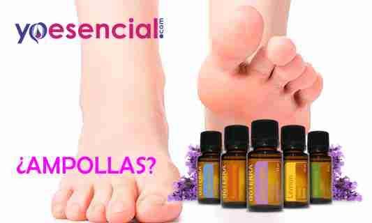 ampollas en el pie usa aceites esenciales