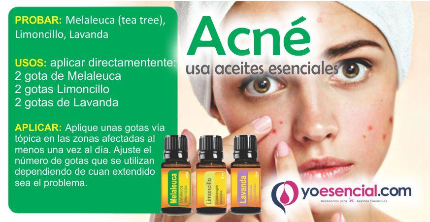 acné aceites esenciales